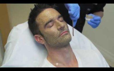 Dr. Emer: Cosmelan Peel Treatment