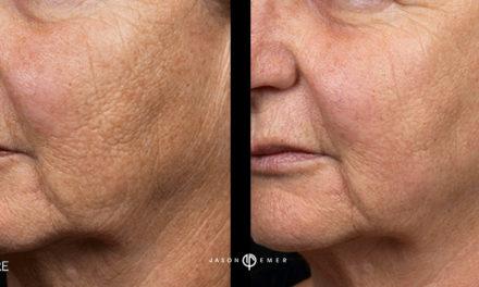 Fraxel Laser: Skin Resurfacing