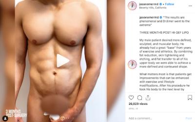 HD Liposculpture for Men