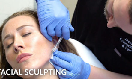 FEMALE FACIAL SCULPTING OF THE JAWLINE AND CHIN WITH FILLERS