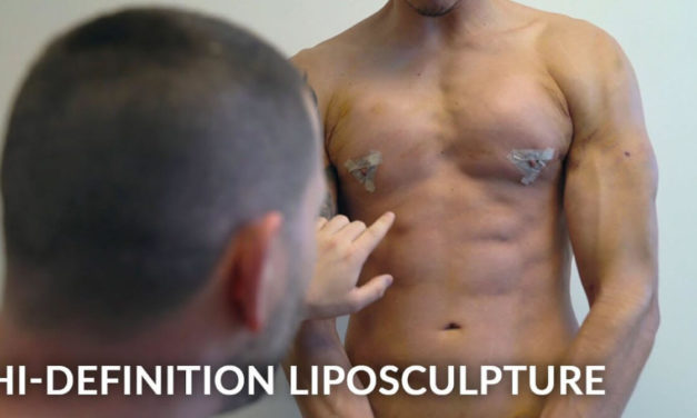MALE VASER HI-DEFINITION FULL BODY LIPOSUCTION FOR A TIGHT, TONED, AND SCULPTED BODY