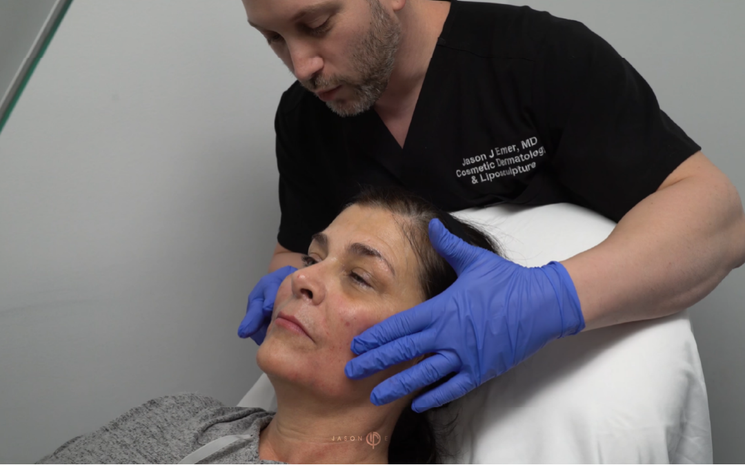 FEMALE FACIAL SCULPTING OF THE CHEEKS, NASOLABIAL FOLDS AND CHIN WITH FILLERS
